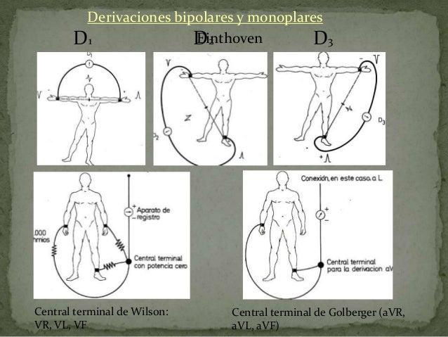 Ángulo de LouisDerivacionesprecordialesSon derivaciones      • situadas en el plano horizontal      • monopolaresV1:   4º ...