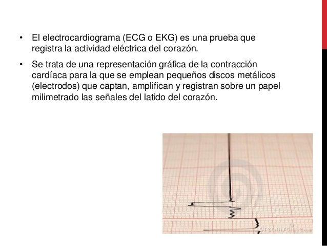 Electrocardiograma Slide 2