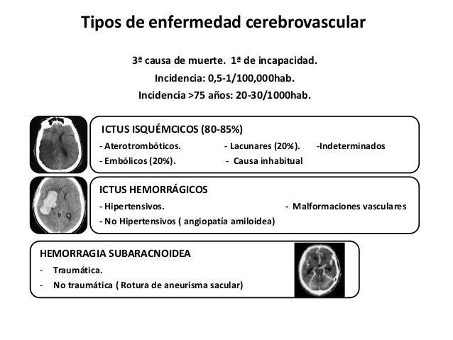 Electrocardiograma y troponinas en Enfermedad Cerebrovascular Slide 3