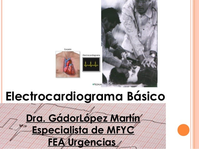 Electrocardiograma Básico Dra. GádorLópez Martín Especialista de MFYC FEA Urgencias