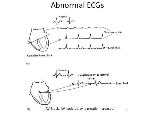 Electro Cardiogramecg