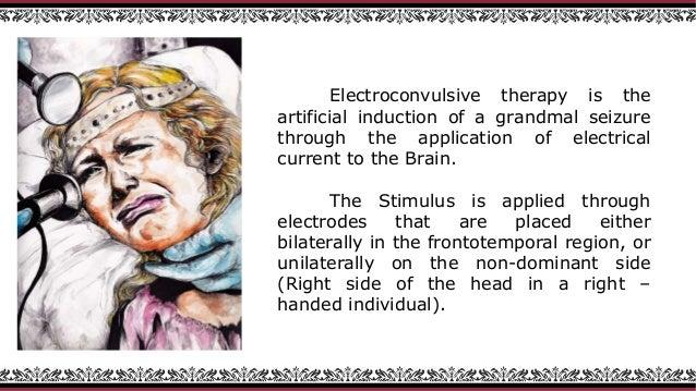 electroshock therapy diagram wiring diagrams control Electroshock Therapy for Depression electroshock therapy diagram wiring diagram shock therapy diagram electroshock therapy diagram