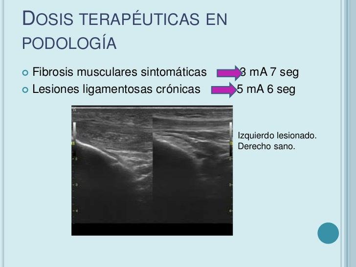 DOSIS TERAPÉUTICAS EN PODOLOGÍA Lesiones musculares crónicas         5 mA 6 seg Tratamiento de puntos gatillos en lesión...