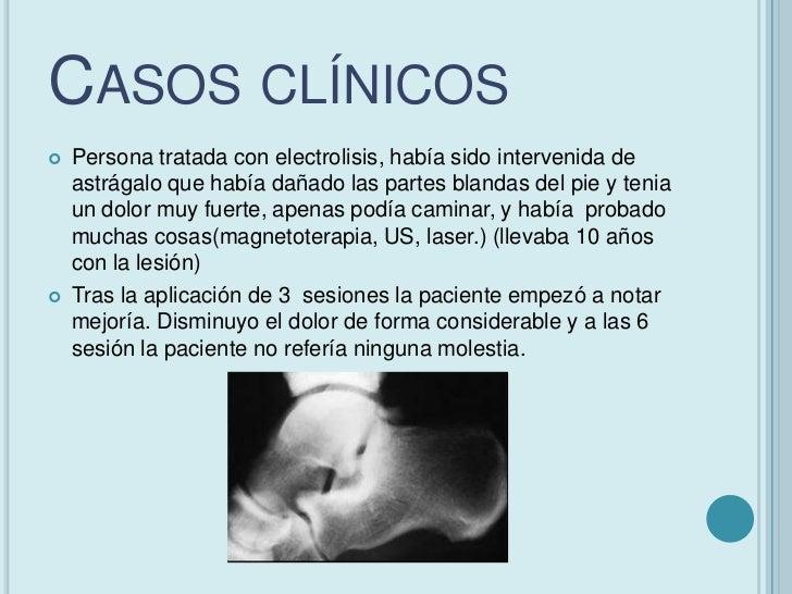 CASOS CLÍNICOS   Rotura parcial tendón rotuliano.    Paciente ciclista amateur de 41 años de edad, trabaja como    crista...