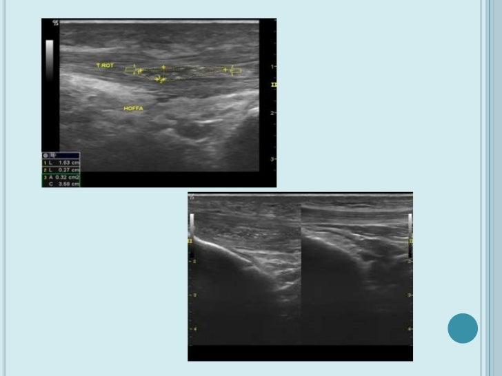    Tratamiento mediante electrólisis percutánea intratisular    (EPI®) ecoguiada    En la primera visita se realiza un ec...