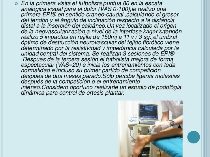 PRECAUCIONES EN EL USO DEAGUJAS•   Las agujas deben ser de acupuntura estériles de    0.30 mm de diámetro y de acero inoxi...