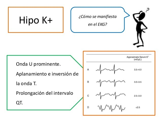 Hipo K+ ¿Cómo se manifiesta en el EKG? Onda U prominente. Aplanamiento e inversión de la onda T. Prolongación del interval...