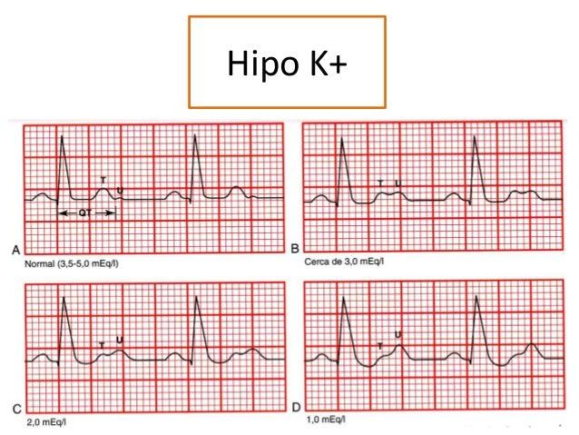 Hipo K+