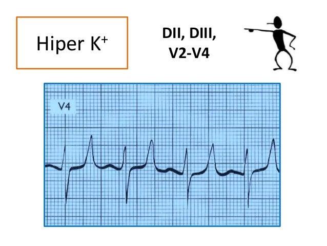 DII, DIII, V2-V4Hiper K+