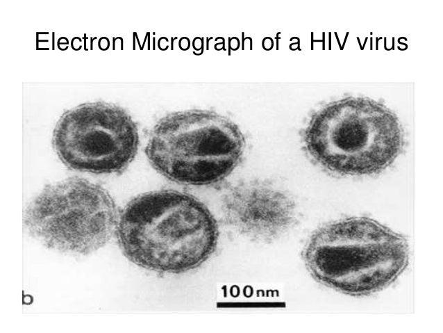 electron microscopy hiv - photo #3