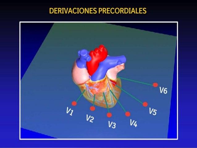 """Derivaciones precordiales • Electrodos que """"rodean"""" al corazón"""