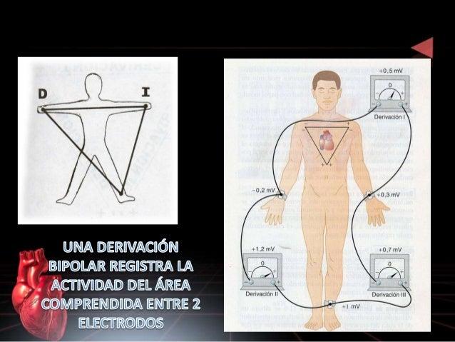 DERIVACIONES DEL PLANO HORIZONTAL O PRECORDIALES • V1: Línea paraesternal DER 4º espacio intercostal • V2: Línea paraester...