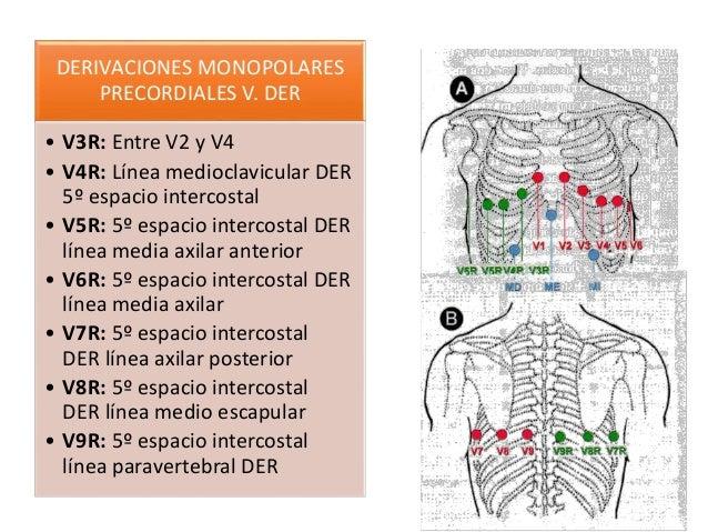 CALCULO DE FRECUENCIA CARDIACA POR EKG -1500 /N*  0.04 -300/ N*  0.20 -REGLA NEMOTÉCNICA 300-150 -100 -75 -60 -50 -43-37...