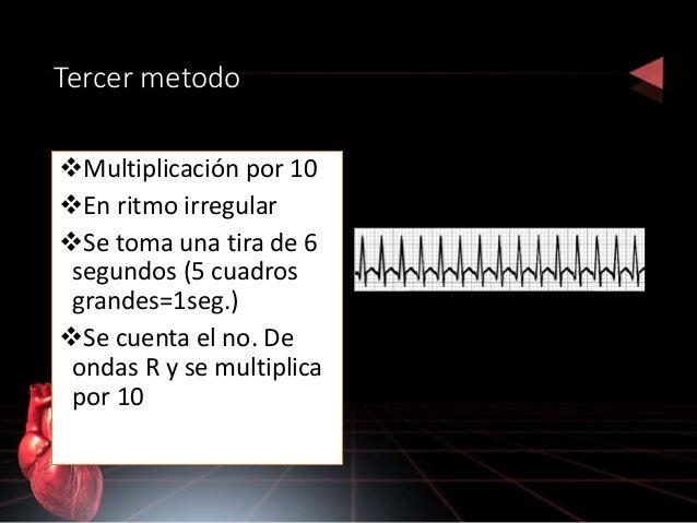 Complejo qrs REPRESENTA: despolarización ventrícular, aunque también puede ser aurícular Es vital para valorar actividad d...