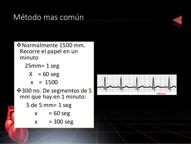 COMPLEJO QRS • CONFIGURACIÓN: 3 ondas: onda Q ( primera deflexión negativa) onda R ( deflexión positiva ) onda S ( segunda...