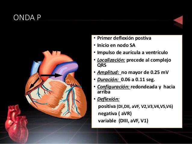 SEGMENTO ST • Final de la despolarización y comienzo de la repolarización ventrícular • Punto J ( final del complejo QRS y...