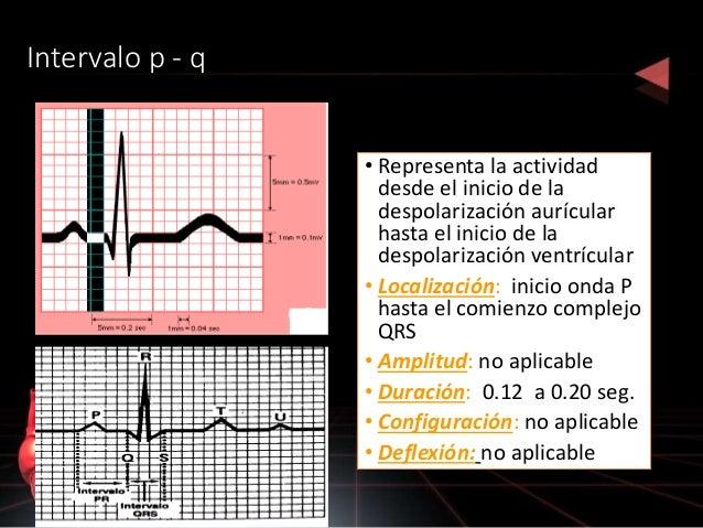SEGMENTO ST • VARIACIONES: • Elevación: 0.2 mV indica lesión miocardica • Depresión: lesión o isquemia miocárdicas • Cambi...