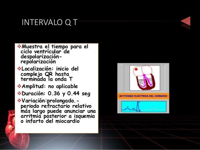 Eje del QRS Representa la dirección general de la actividad eléctrica del corazón Es cercano a los 60º El eje normal del Q...