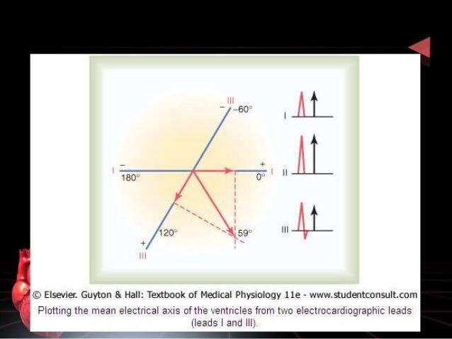Electro normal