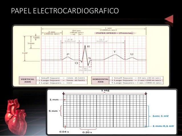 Derivaciones del EKG: 12 • I • II • III • AVR • AVL • AVF • V1 • V2 • V3 • V4 • V5 • V6 BIPOLARES +/- MONOPOLARES +