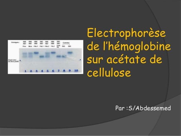 Par :S/Abdessemed Electrophorèse de l'hémoglobine sur acétate de cellulose