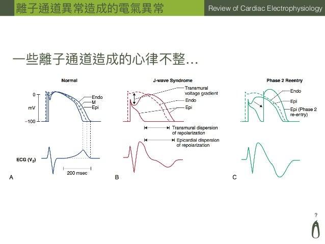 ? Review of Cardiac Electrophysiology ⼀一些離⼦子通道造成的⼼心律律不整… 離⼦子通道異異常造成的電氣異異常