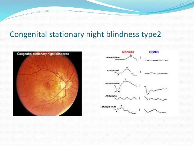 Night Blindness: Causes And Treatments