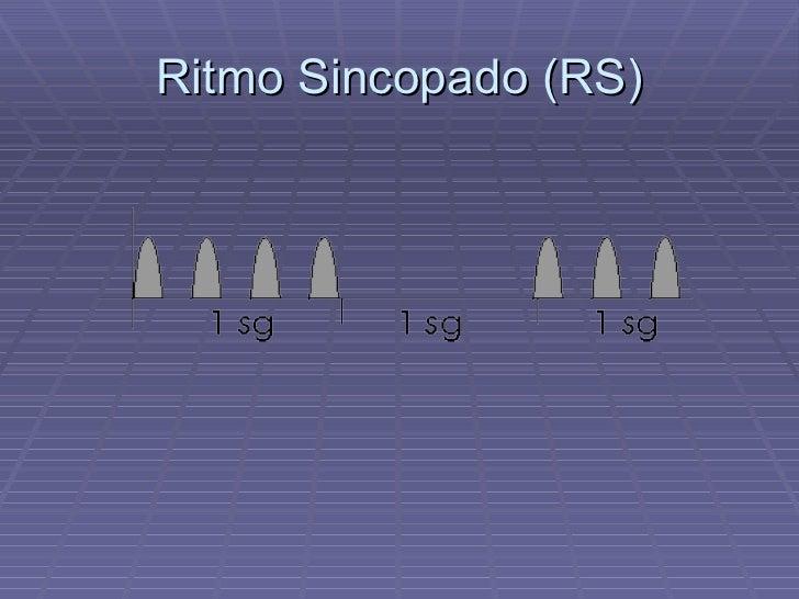 Ritmo Sincopado (RS)