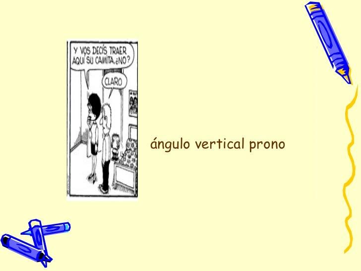 ángulo vertical prono