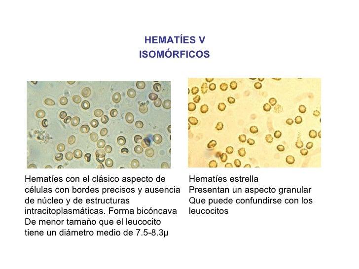 HEMATÍES V                           ISOMÓRFICOSHematíes con el clásico aspecto de       Hematíes estrellacélulas con bord...