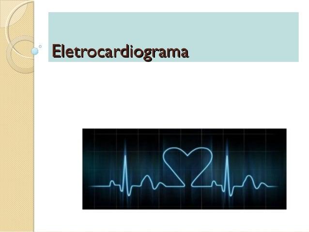 EletrocardiogramaEletrocardiograma