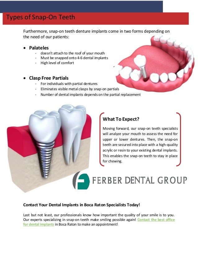 Elevate Your Implants With Snap-On Teeth