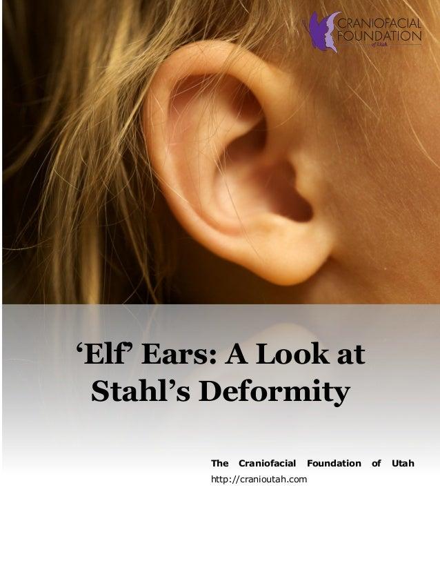 Stahl's Ear Malformation – Palm Beach Gardens Otoplasty