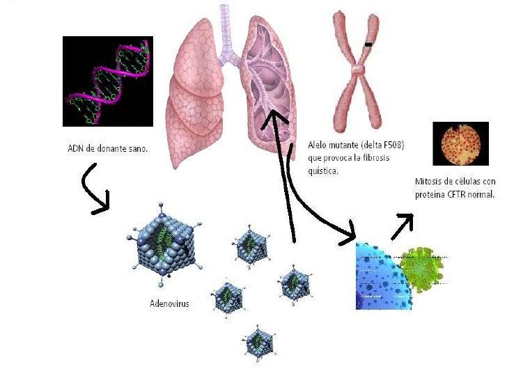 El Fin De La Fibrosis QuíStica