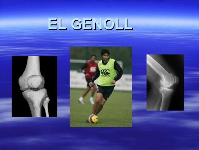 EL GENOLLEL GENOLL