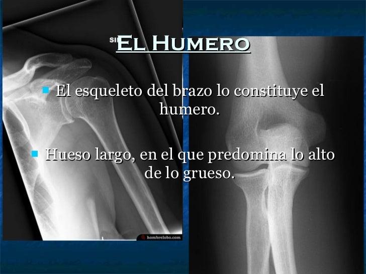 El Humero <ul><li>El esqueleto del brazo lo constituye el humero. </li></ul><ul><li>Hueso largo, en el que predomina lo al...
