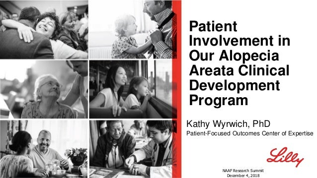 Patient Involvement in Our Alopecia Areata Clinical Development Program Kathy Wyrwich, PhD Patient-Focused Outcomes Center...
