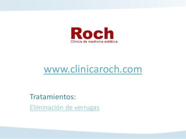www.clinicaroch.comTratamientos:Eliminación de verrugas