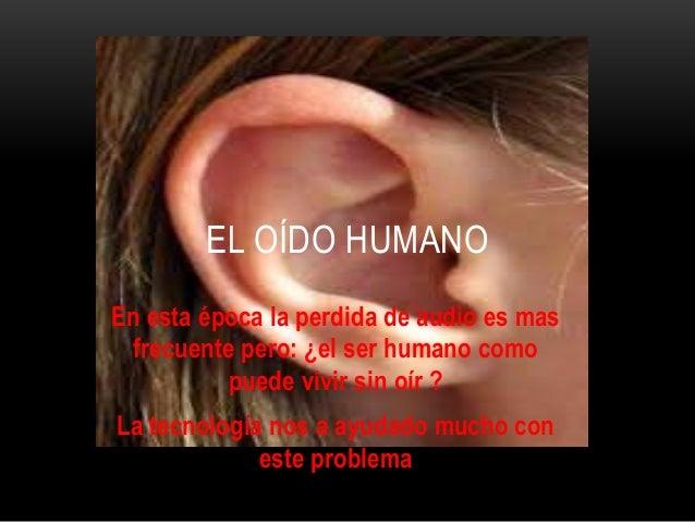 En esta época la perdida de audio es mas frecuente pero: ¿el ser humano como puede vivir sin oír ? La tecnología nos a ayu...