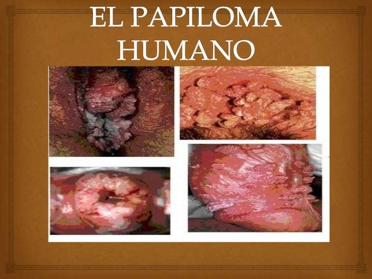 Como Curar El Papiloma Humano? Mi Historia De xito FOTOS 87