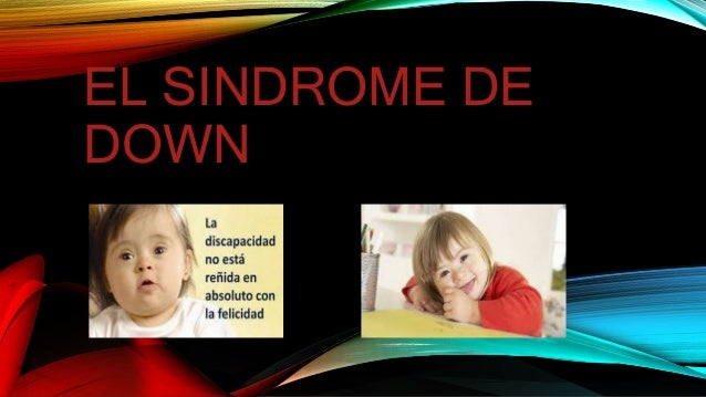 EL SINDROME DE DOWN