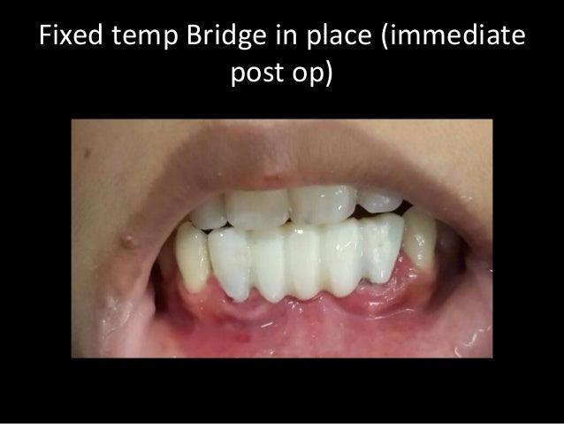 Immediate Temporary Bridge On Immediate Placement Implants