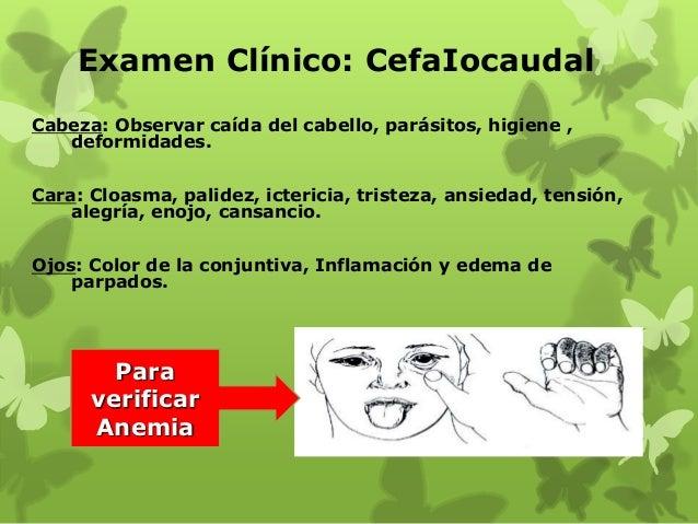 Examen Clínico: CefaIocaudal Cabeza: Observar caída del cabello, parásitos, higiene , deformidades. Cara: Cloasma, palidez...