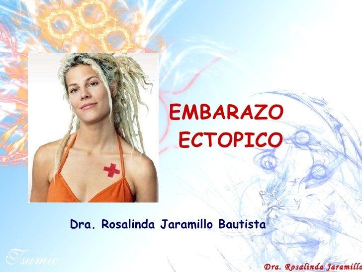 EMBARAZO  ECTOPICO Dra. Rosalinda Jaramillo Bautista