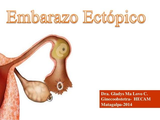 Dra. Gladys Ma Lovo C. Ginecoobstetra- HECAM Matagalpa-2014