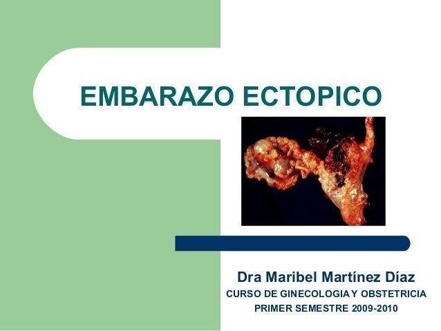 EMBARAZO ECTOPICO  Dra Maribel Martínez Díaz  CURSO DE GINECOLOGIA Y OBSTETRICIA  PRIMER SEMESTRE 2009-2010