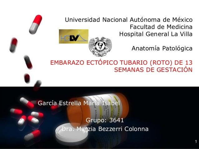 1 Universidad Nacional Autónoma de México Facultad de Medicina Hospital General La Villa Anatomía Patológica EMBARAZO ECTÓ...