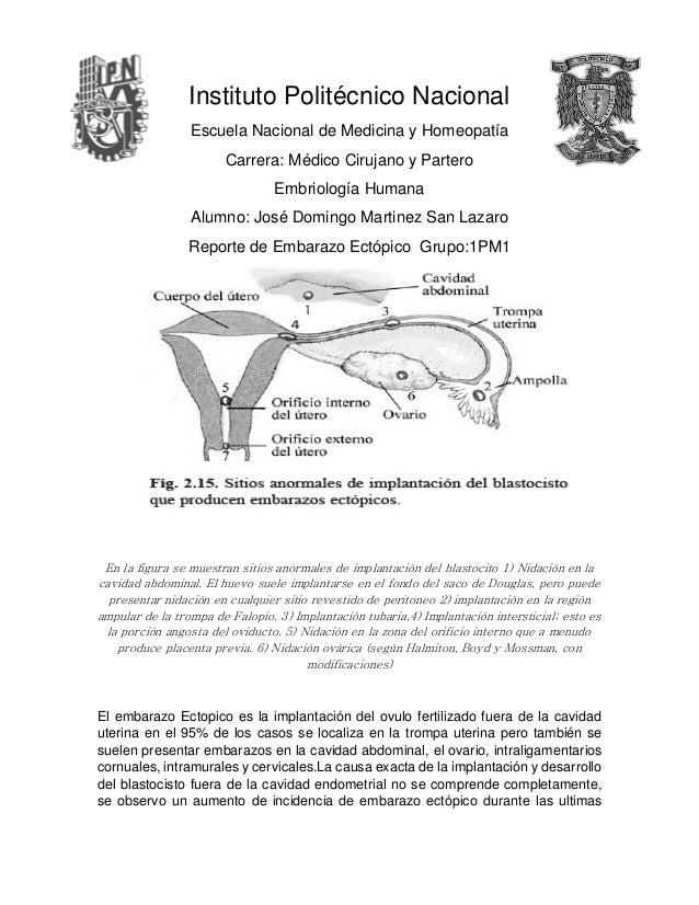 Instituto Politécnico Nacional Escuela Nacional de Medicina y Homeopatía Carrera: Médico Cirujano y Partero Embriología Hu...