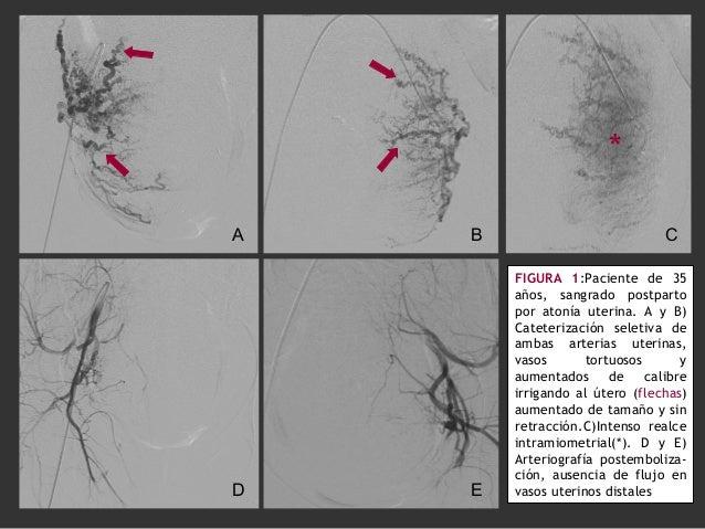 FIGURA 1:Paciente de 35 años, sangrado postparto por atonía uterina. A y B) Cateterización seletiva de ambas arterias uter...