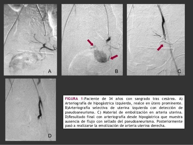 FIGURA 1:Paciente de 34 años con sangrado tras cesárea. A) Arteriografía de hipogástrica izquierda, realce en útero promin...